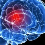 Brain Tumor Symptoms And Signs- You Should Know Before It Is Too Late