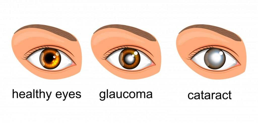 Four Types OF Glaucoma