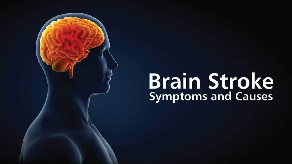 Pre-Sign And Symptoms Of Brain Stroke