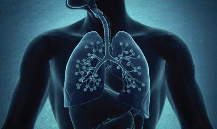 Bronchitis Symptoms, Treatment & 5 Tips To Keep Bronchitis Away