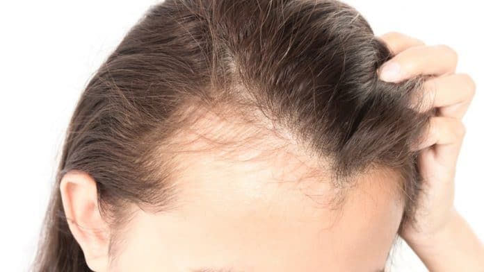 Hair Loss Causes And Top Natural Remedies To Stop Hair Fall