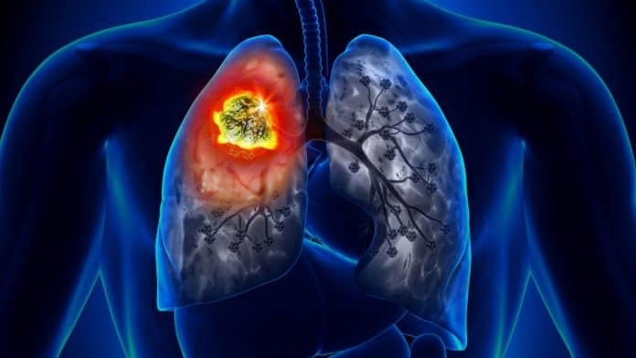 Lung Cancer Symptoms And Treatments Everybody Should Be Aware