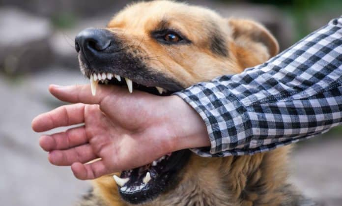 What To Do When Animal Bites A Complete Safety Guide