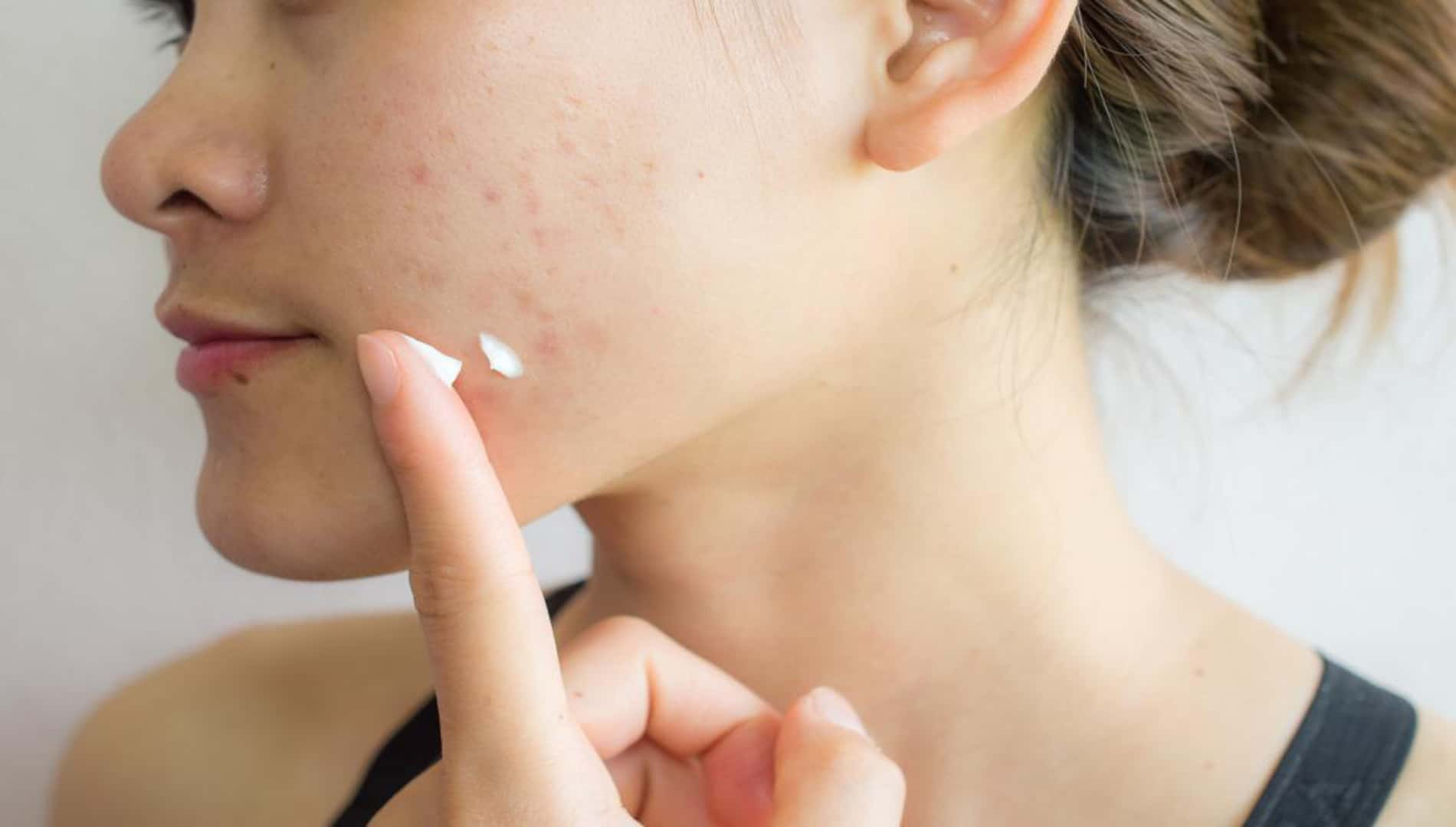 How To Remove Acne Scars From Face Fast