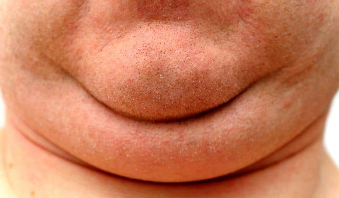 Most Effective Exercises To Reduce Double Chin