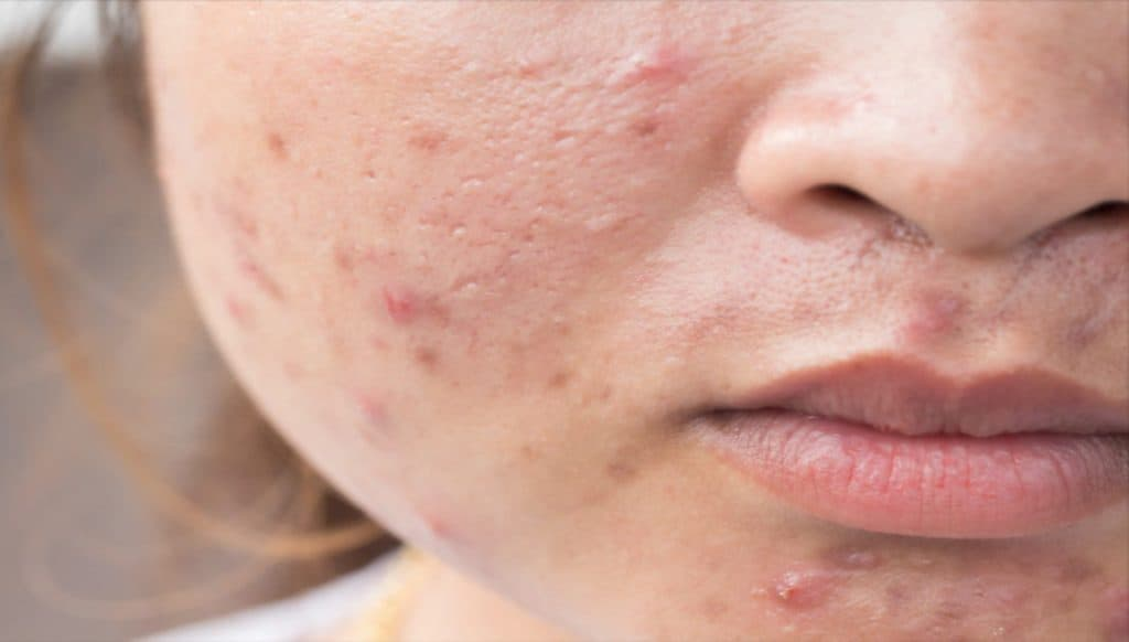 Remove Acne Scars From Face Fast