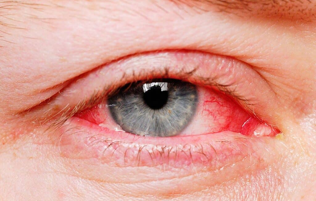 Get Rid Of The Red Eyes Without Eye Drops