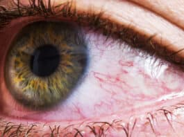 How To Get Rid Of The Red Eyes Without Eye Drops